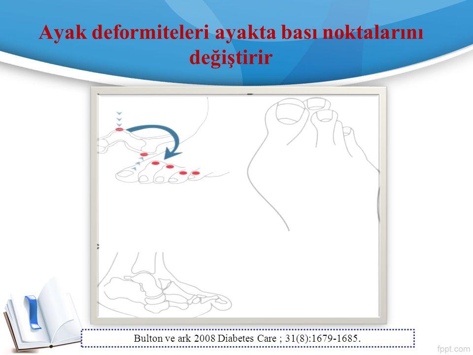 Ayak deformiteleri ayakta bası noktalarını değiştirir