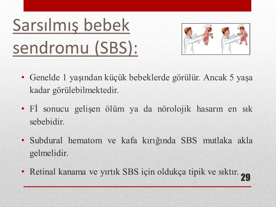 Sarsılmış bebek sendromu (SBS):