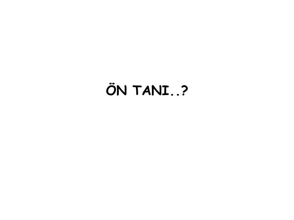 ÖN TANI..