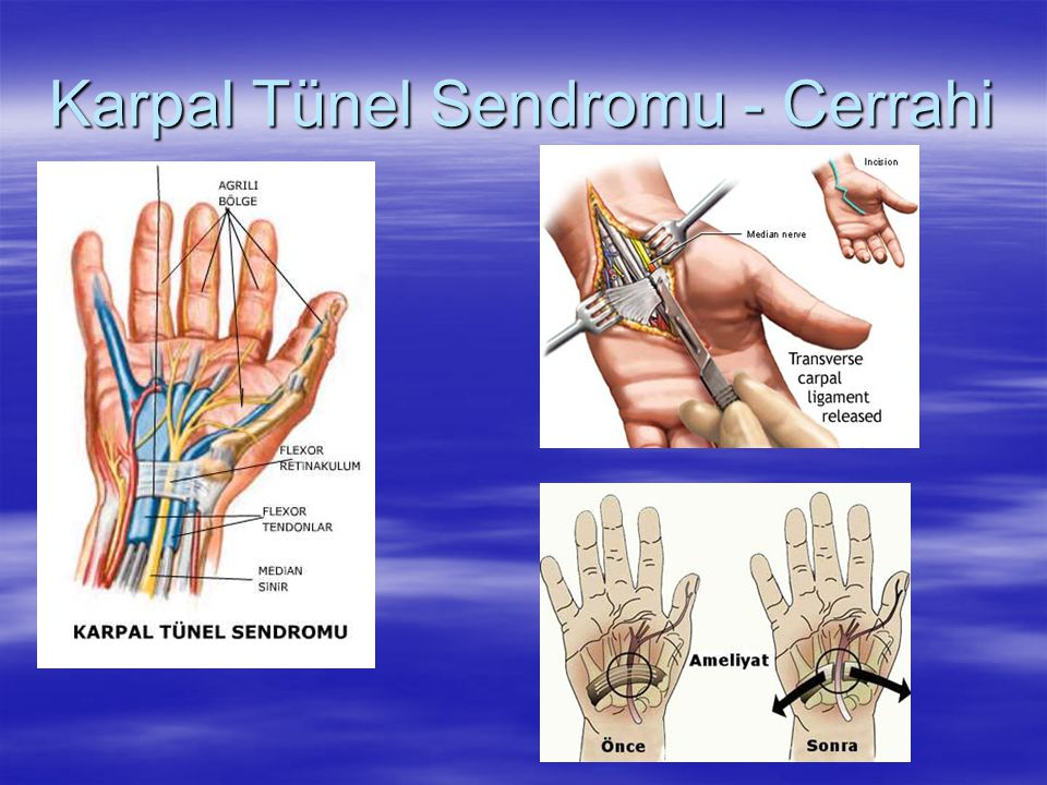 Karpal Tünel Sendromu - Cerrahi