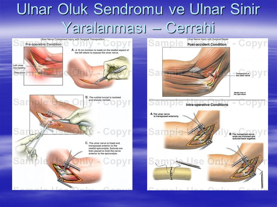 Ulnar Oluk Sendromu ve Ulnar Sinir Yaralanması – Cerrahi