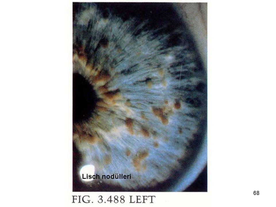 Lisch nodülleri genetik hastalıklar 2006