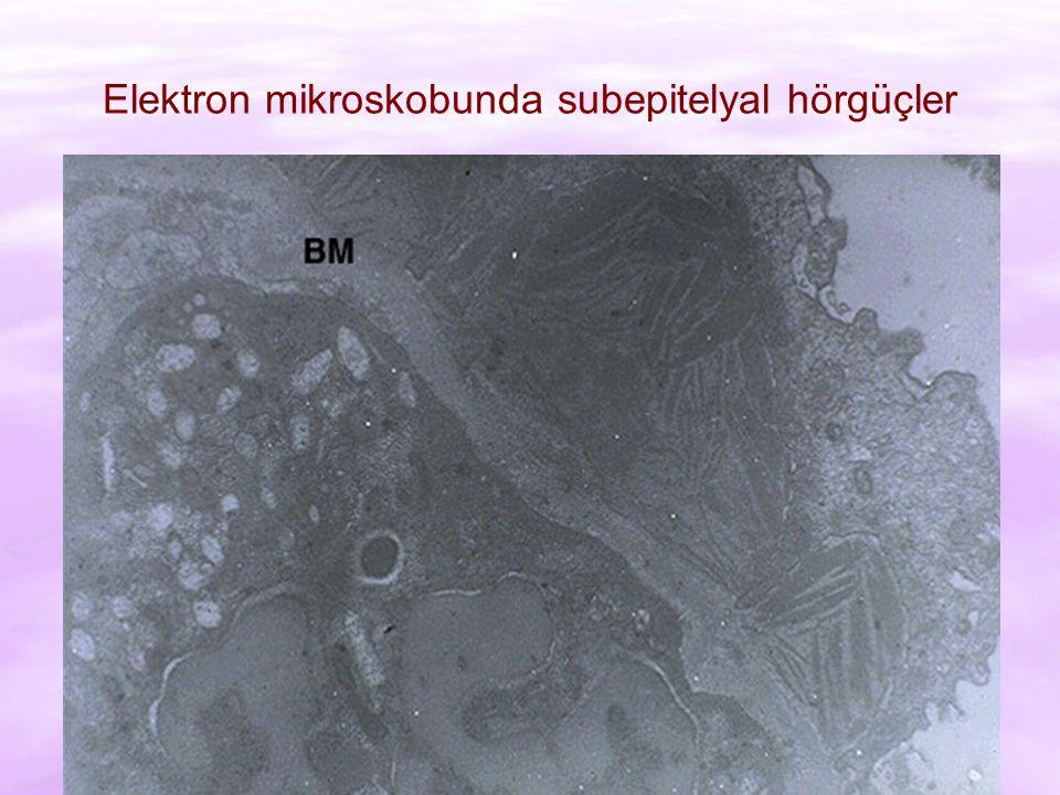 Elektron mikroskobunda subepitelyal hörgüçler