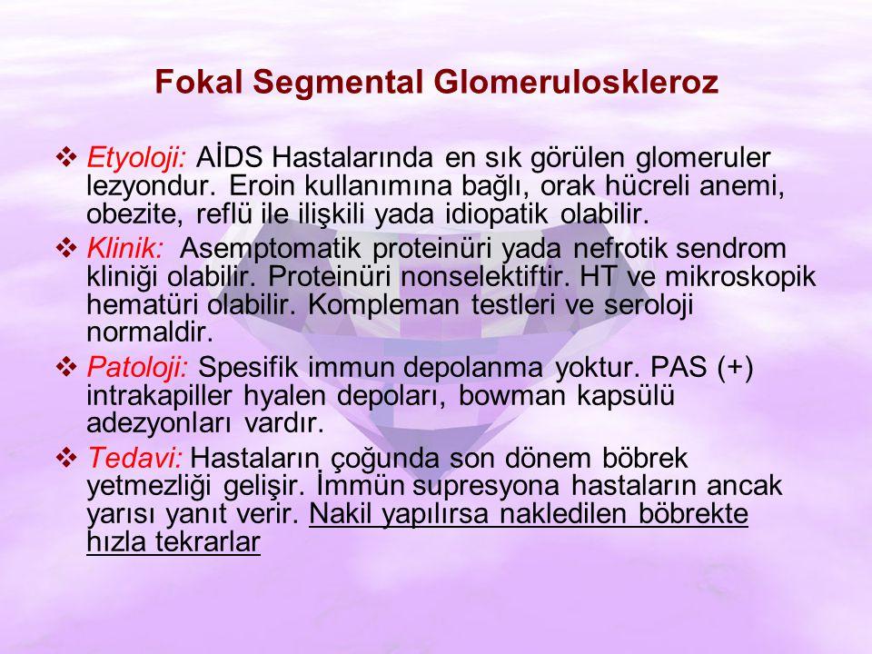 Fokal Segmental Glomeruloskleroz