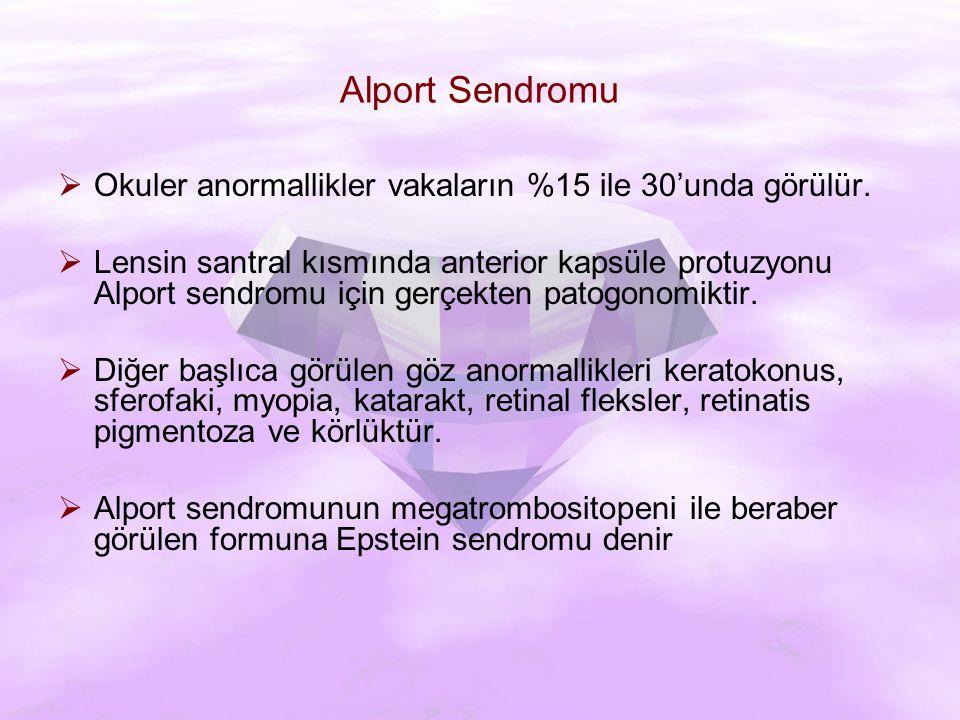 Alport Sendromu Okuler anormallikler vakaların %15 ile 30'unda görülür.