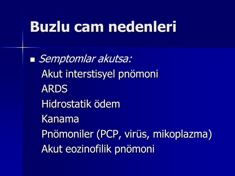 Buzlu cam nedenleri Semptomlar akutsa: Akut interstisyel pnömoni ARDS