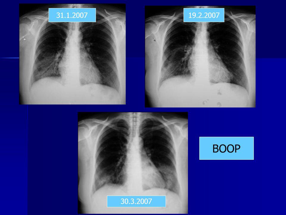 31.1.2007 19.2.2007 BOOP 30.3.2007