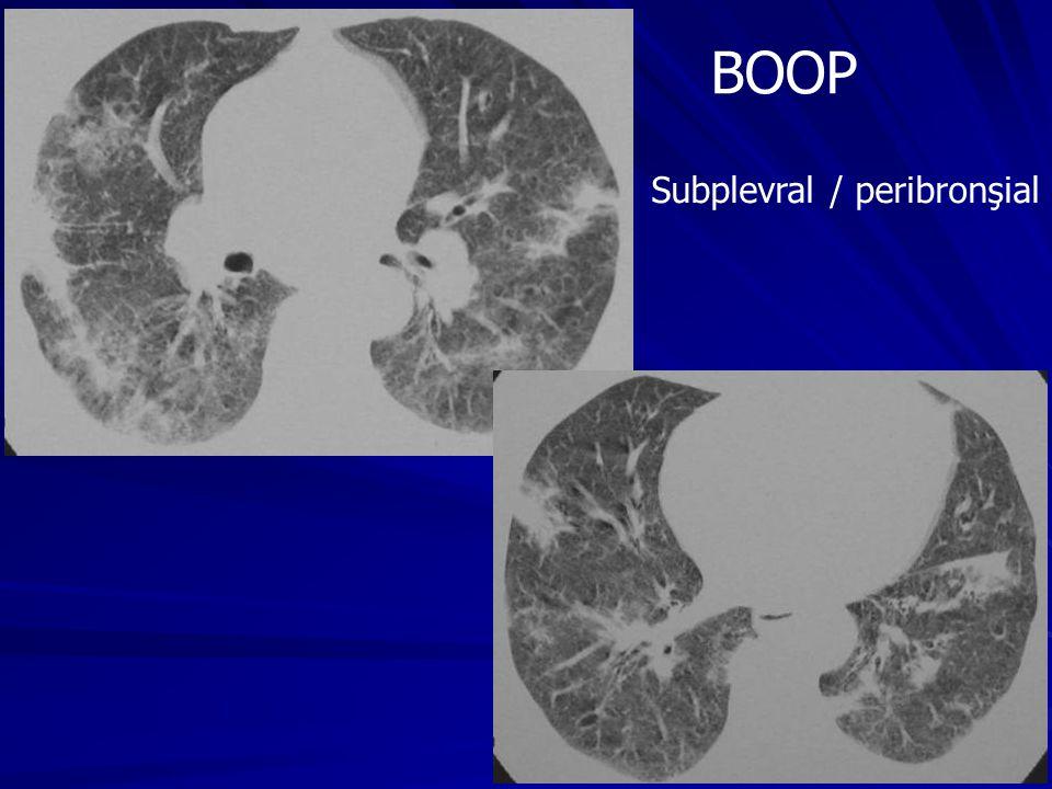 BOOP Subplevral / peribronşial