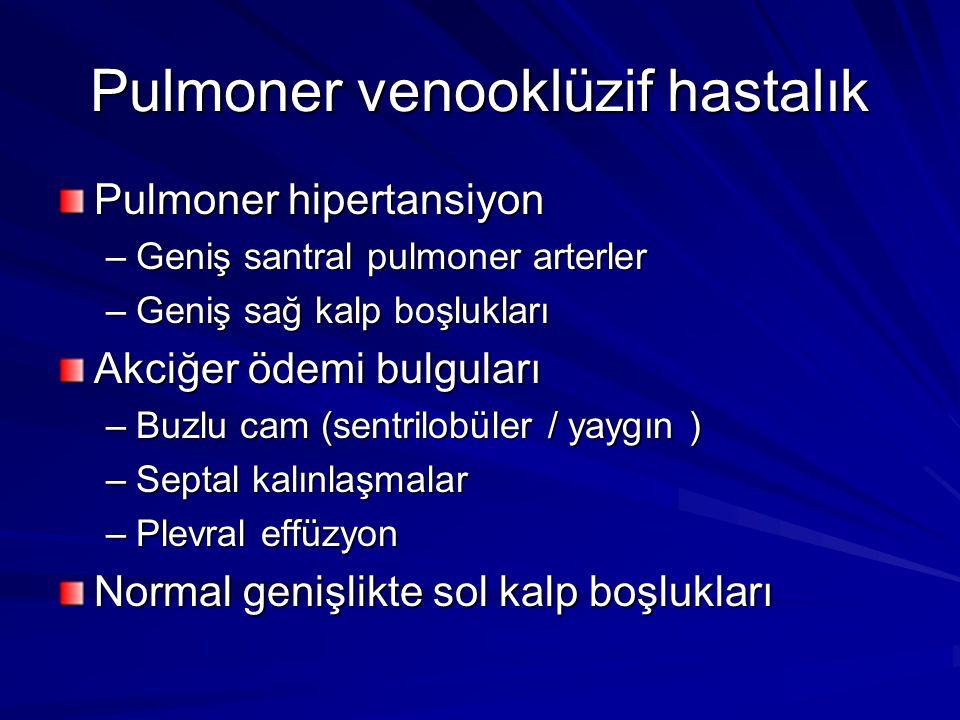 Pulmoner venooklüzif hastalık