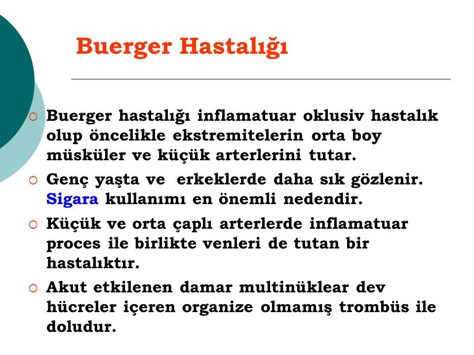 Buerger Hastalığı Buerger hastalığı inflamatuar oklusiv hastalık olup öncelikle ekstremitelerin orta boy müsküler ve küçük arterlerini tutar.