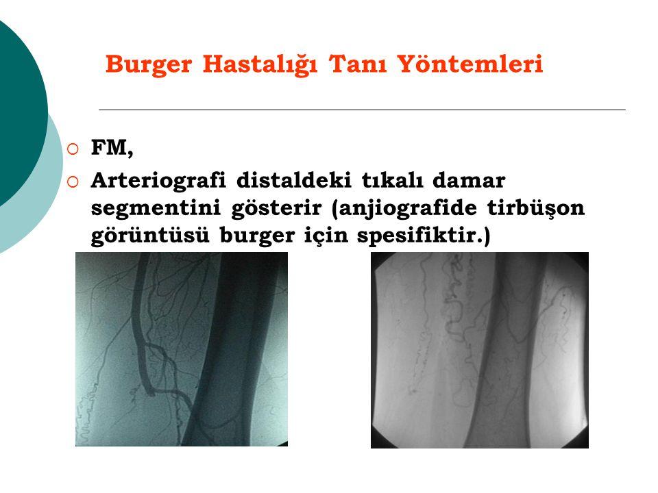 Burger Hastalığı Tanı Yöntemleri