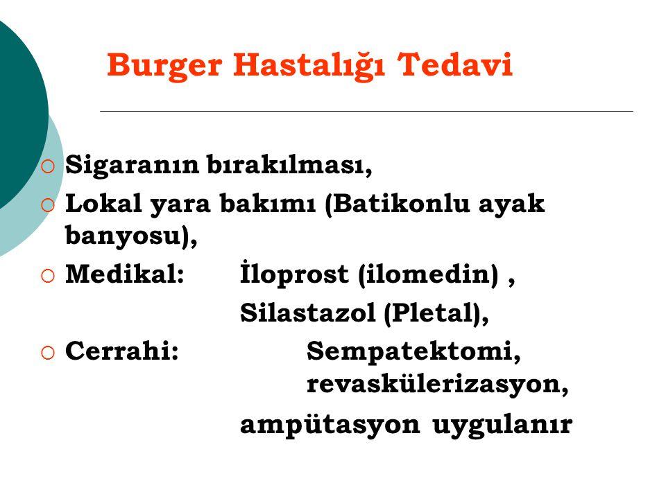 Burger Hastalığı Tedavi