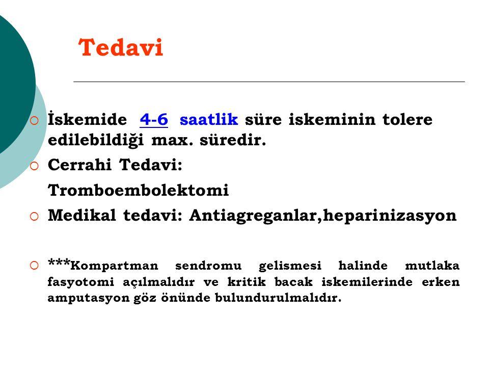 Tedavi İskemide 4-6 saatlik süre iskeminin tolere edilebildiği max. süredir. Cerrahi Tedavi: Tromboembolektomi.