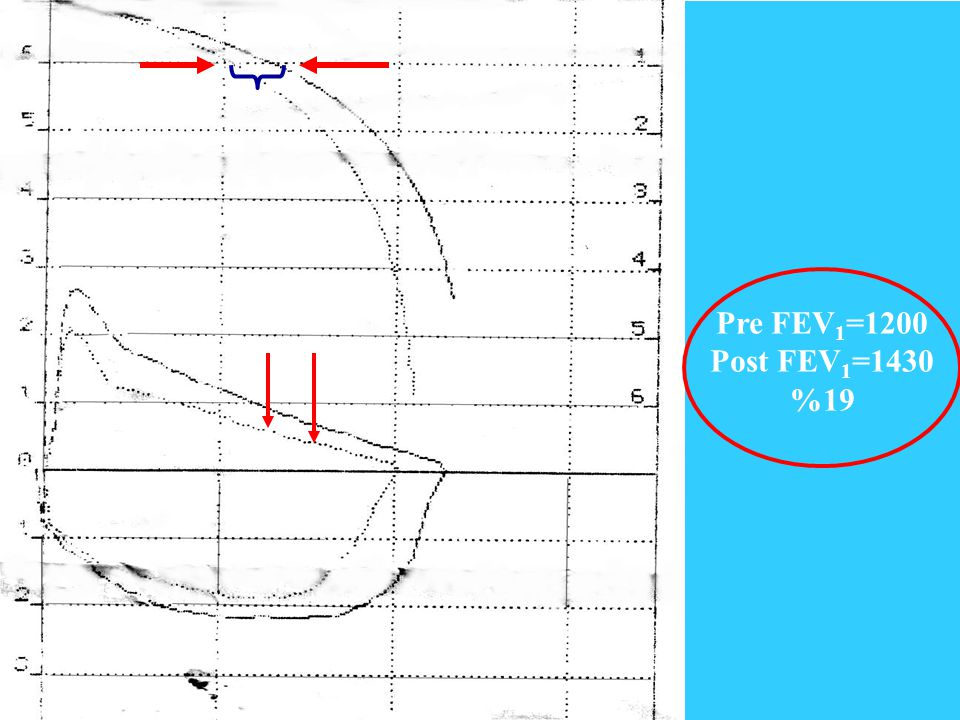 Pre FEV1=1200 Post FEV1=1430 %19
