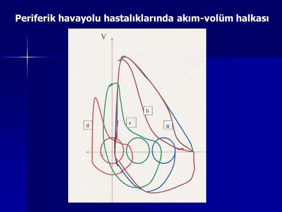 Periferik havayolu hastalıklarında akım-volüm halkası