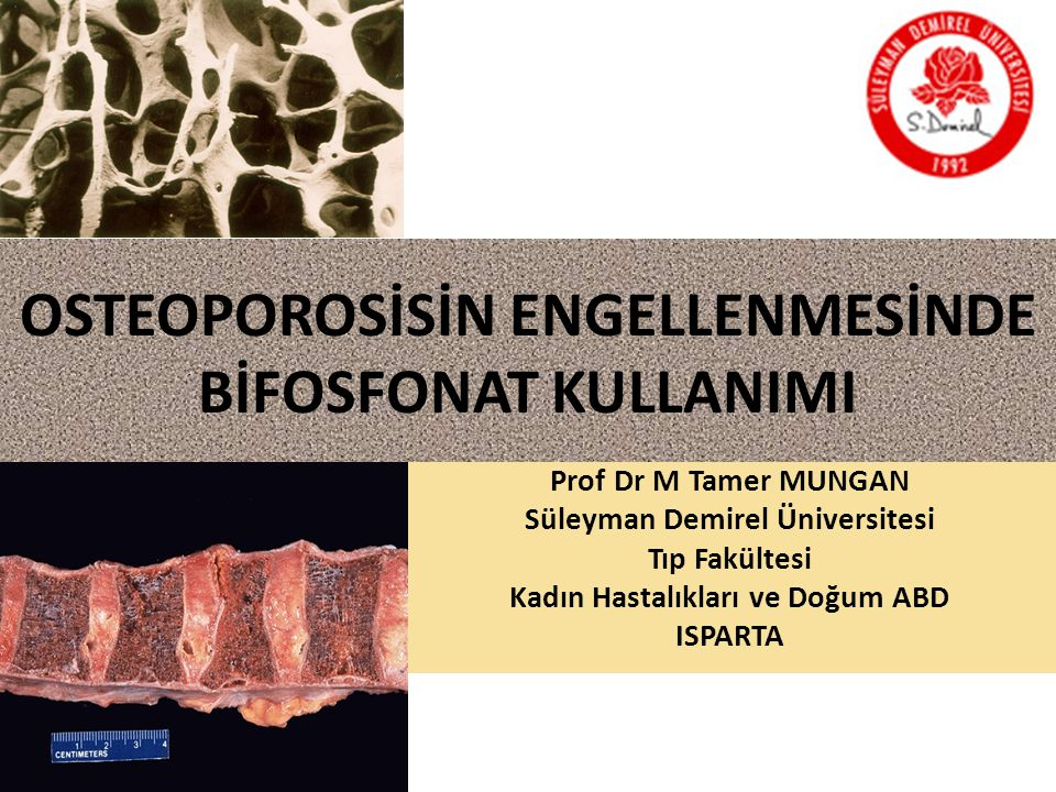 OSTEOPOROSİSİN ENGELLENMESİNDE BİFOSFONAT KULLANIMI