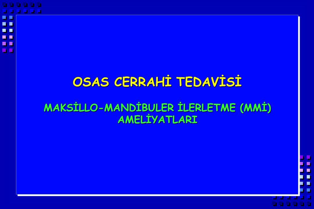 MAKSİLLO-MANDİBULER İLERLETME (MMİ) AMELİYATLARI
