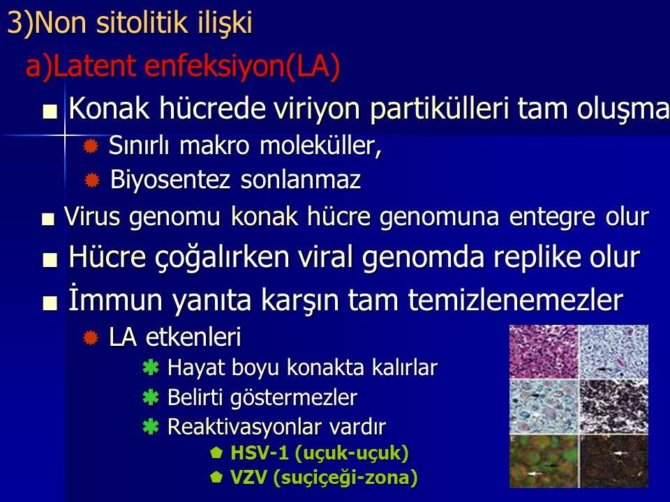 a)Latent enfeksiyon(LA)
