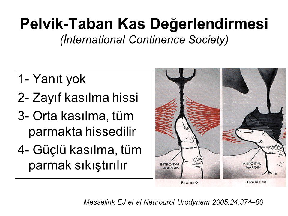 Pelvik-Taban Kas Değerlendirmesi (İnternational Continence Society)