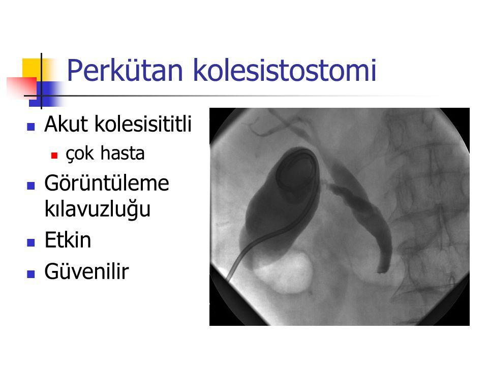 Perkütan kolesistostomi