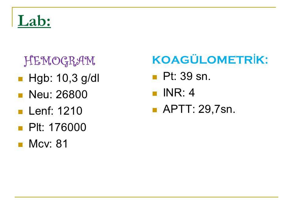 Lab: HEMOGRAM Hgb: 10,3 g/dl Neu: 26800 Lenf: 1210 Plt: 176000 Mcv: 81