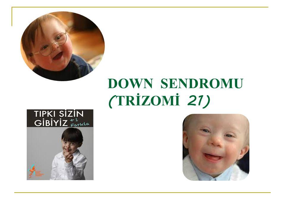 DOWN SENDROMU (TRİZOMİ 21)
