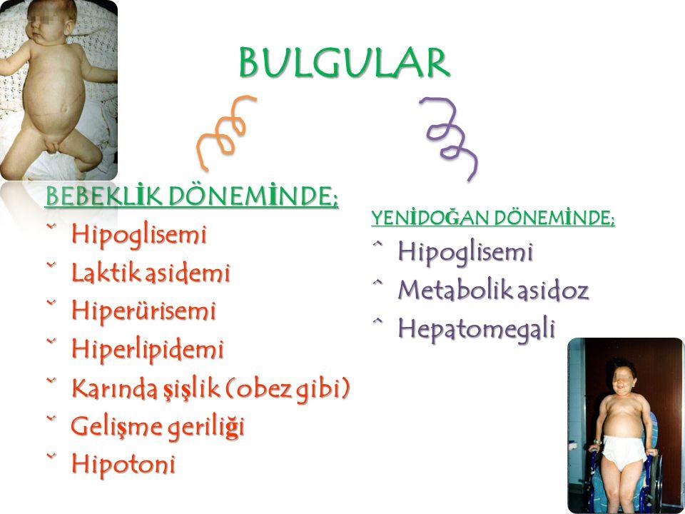 BULGULAR BEBEKLİK DÖNEMİNDE; Hipoglisemi Laktik asidemi Hipoglisemi
