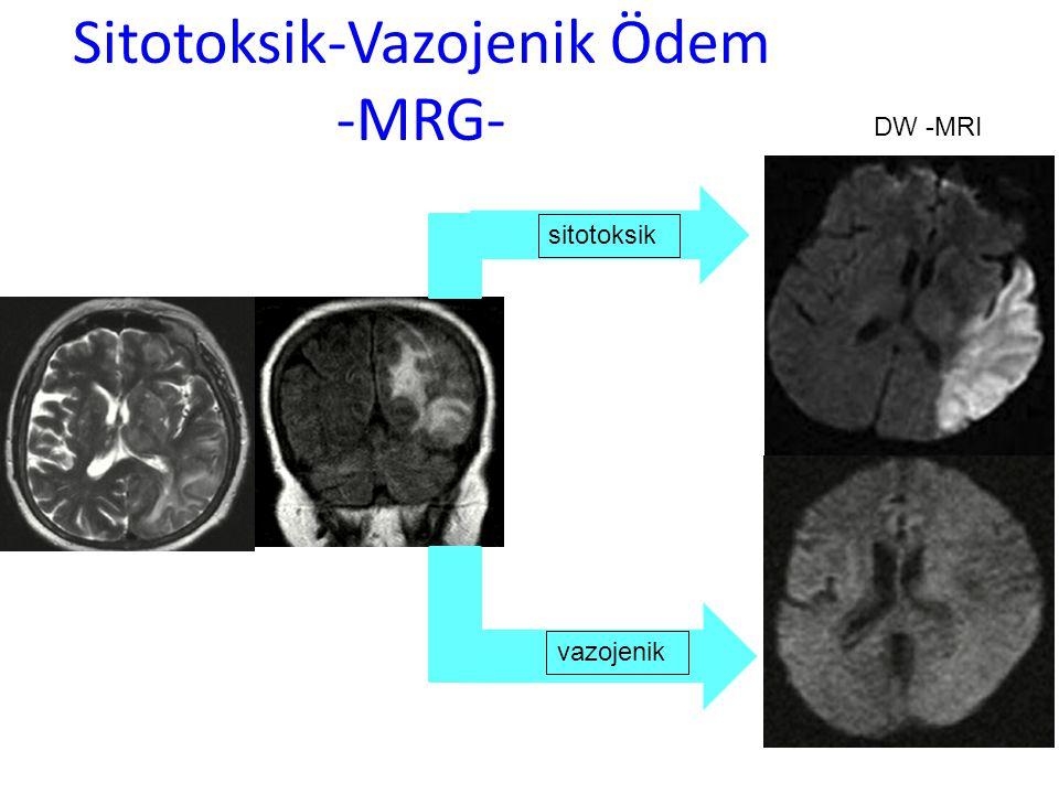 Sitotoksik-Vazojenik Ödem -MRG-