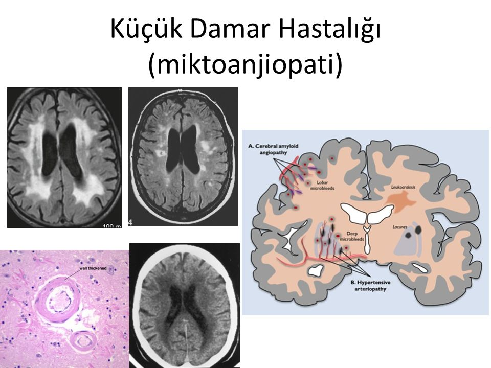 Küçük Damar Hastalığı (miktoanjiopati)