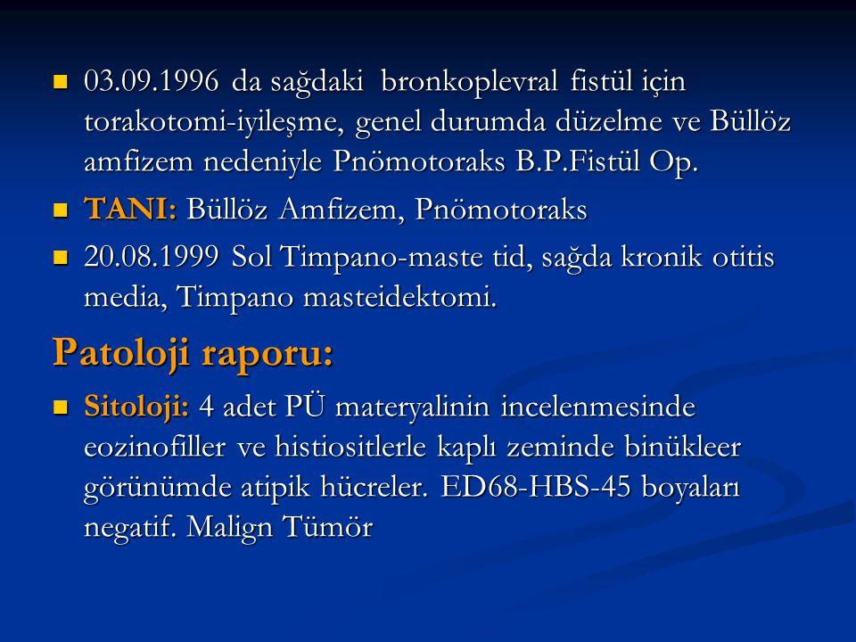 03.09.1996 da sağdaki bronkoplevral fistül için torakotomi-iyileşme, genel durumda düzelme ve Büllöz amfizem nedeniyle Pnömotoraks B.P.Fistül Op.