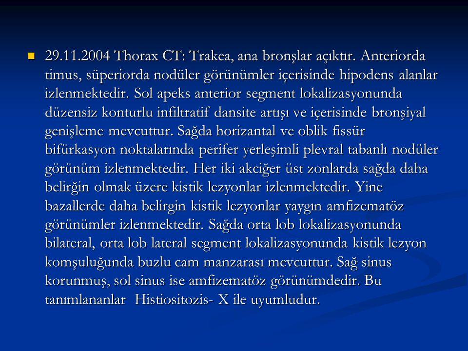 29. 11. 2004 Thorax CT: Trakea, ana bronşlar açıktır
