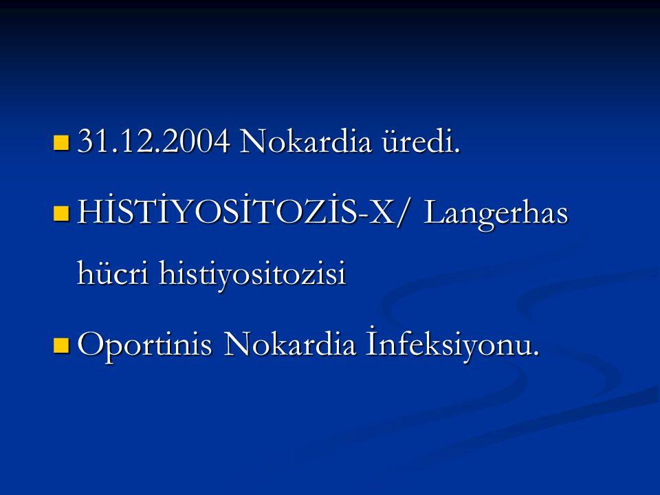 31.12.2004 Nokardia üredi. HİSTİYOSİTOZİS-X/ Langerhas hücri histiyositozisi.