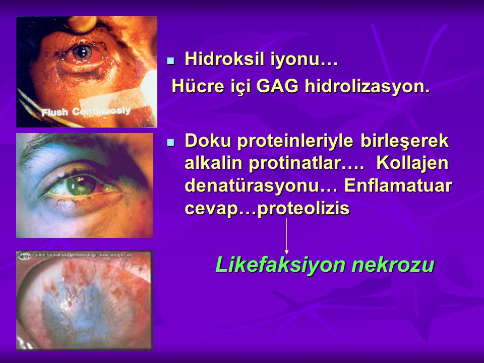 Hidroksil iyonu… Hücre içi GAG hidrolizasyon.
