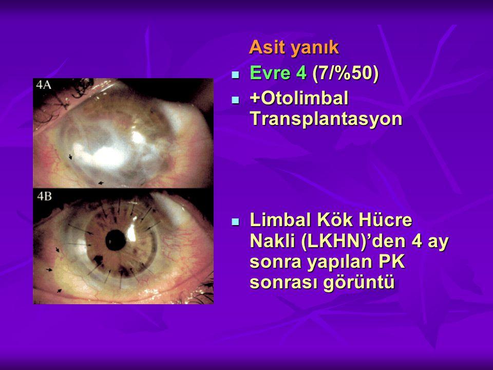 +Otolimbal Transplantasyon