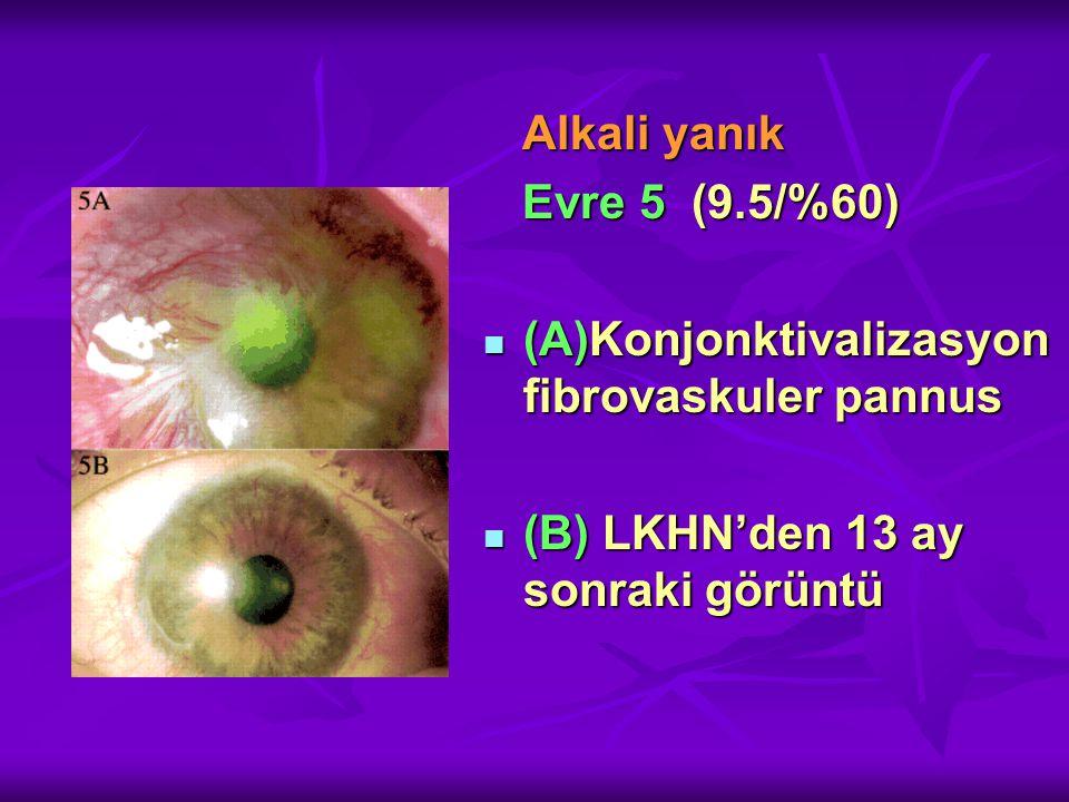 Alkali yanık Evre 5 (9.5/%60) (A)Konjonktivalizasyon fibrovaskuler pannus.