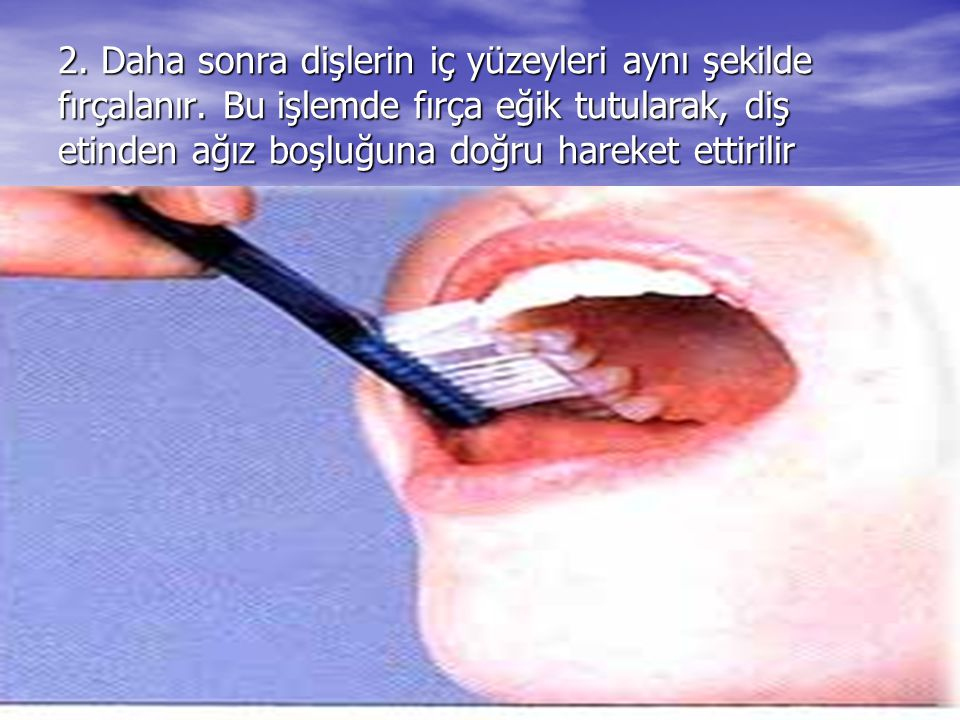 2. Daha sonra dişlerin iç yüzeyleri aynı şekilde fırçalanır