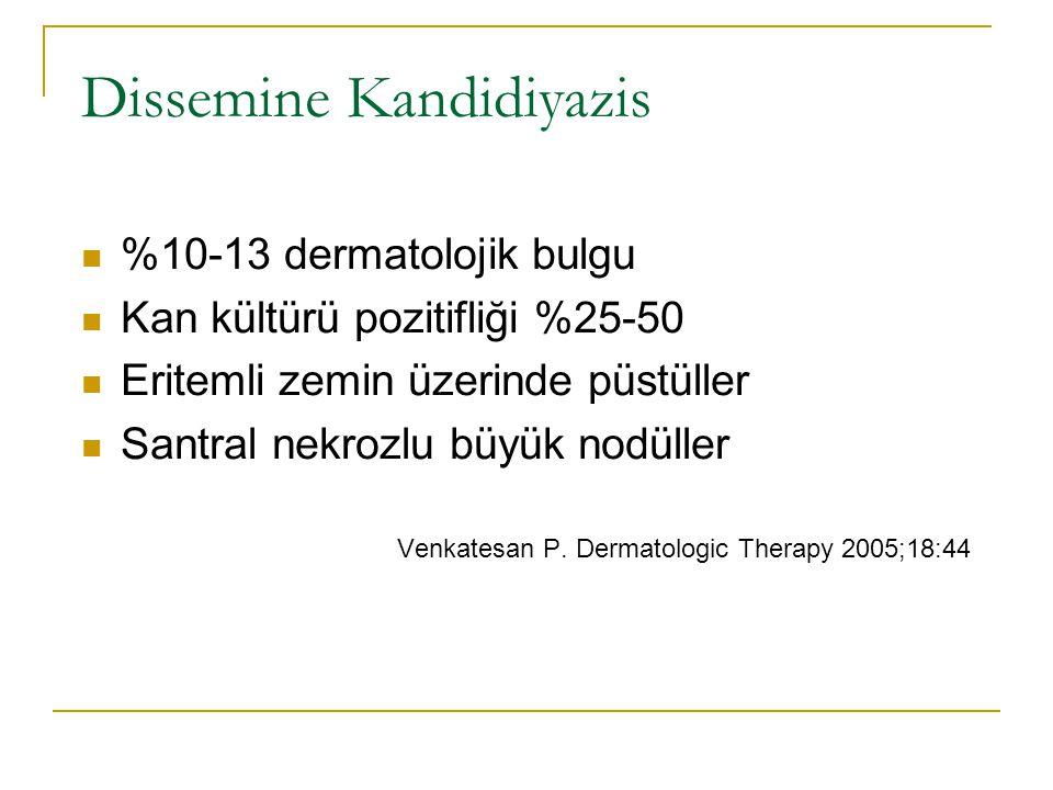 Dissemine Kandidiyazis
