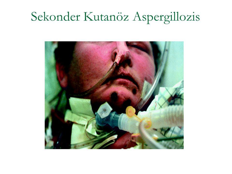 Sekonder Kutanöz Aspergillozis