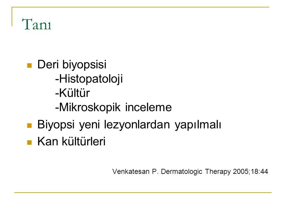 Tanı Deri biyopsisi -Histopatoloji -Kültür -Mikroskopik inceleme