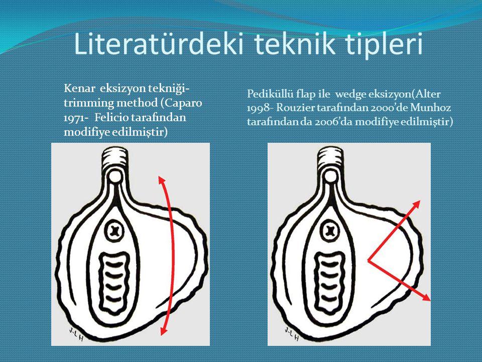 Literatürdeki teknik tipleri