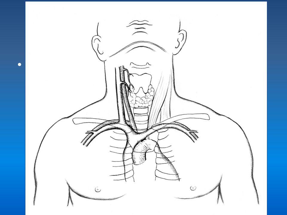 USG ile girim-TEKNİK Prob transvers tutulduğunda; Juguler vende; daha inferior ve lateralden girişim sağlanır.