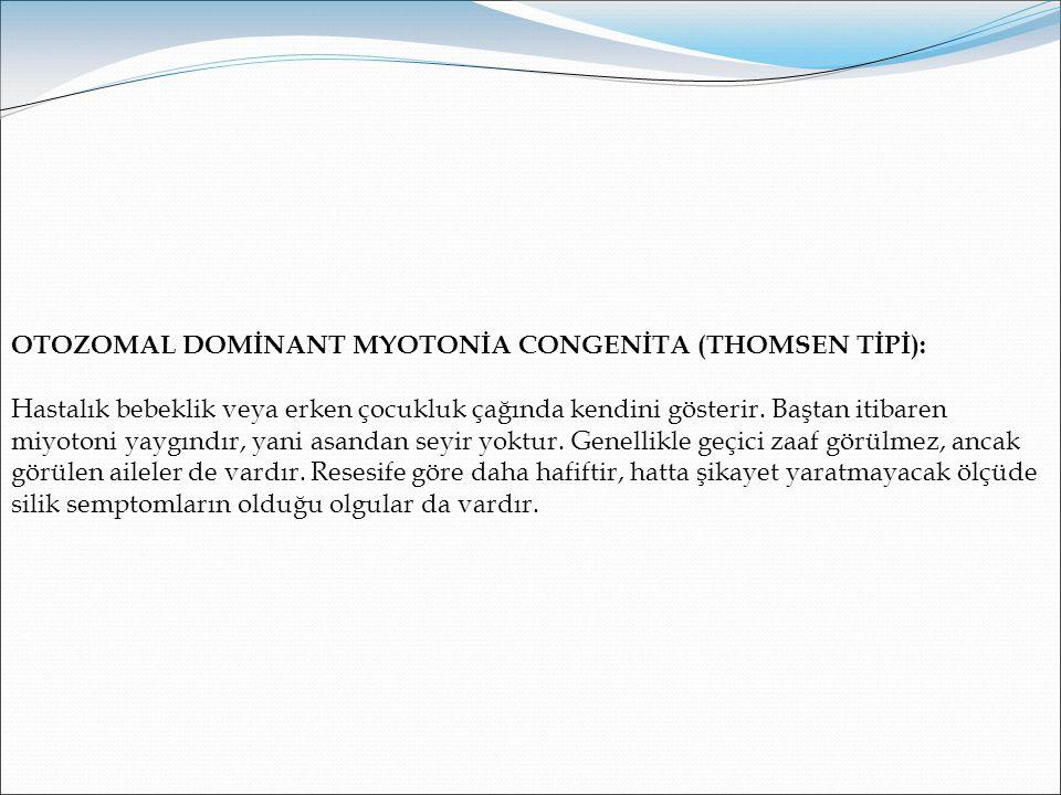 OTOZOMAL DOMİNANT MYOTONİA CONGENİTA (THOMSEN TİPİ):