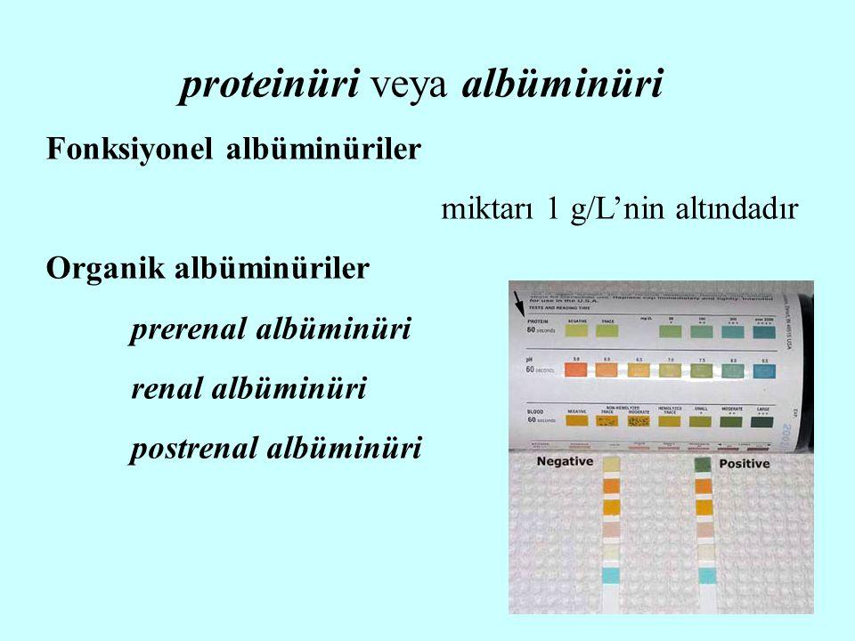 proteinüri veya albüminüri