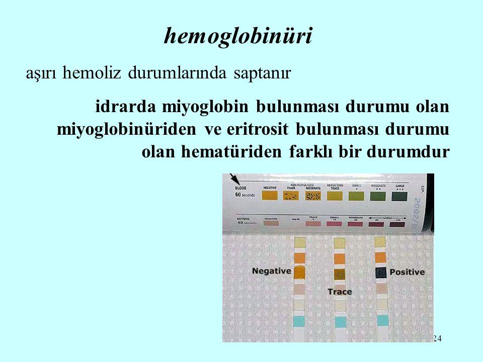 hemoglobinüri aşırı hemoliz durumlarında saptanır