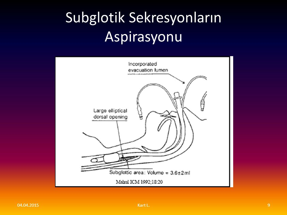 Subglotik Sekresyonların Aspirasyonu