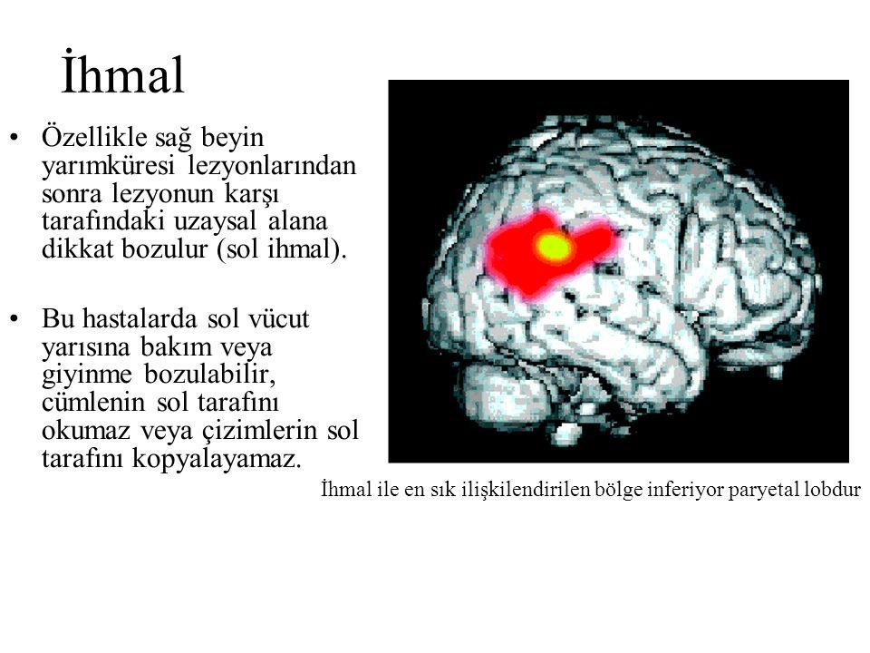 İhmal Özellikle sağ beyin yarımküresi lezyonlarından sonra lezyonun karşı tarafındaki uzaysal alana dikkat bozulur (sol ihmal).