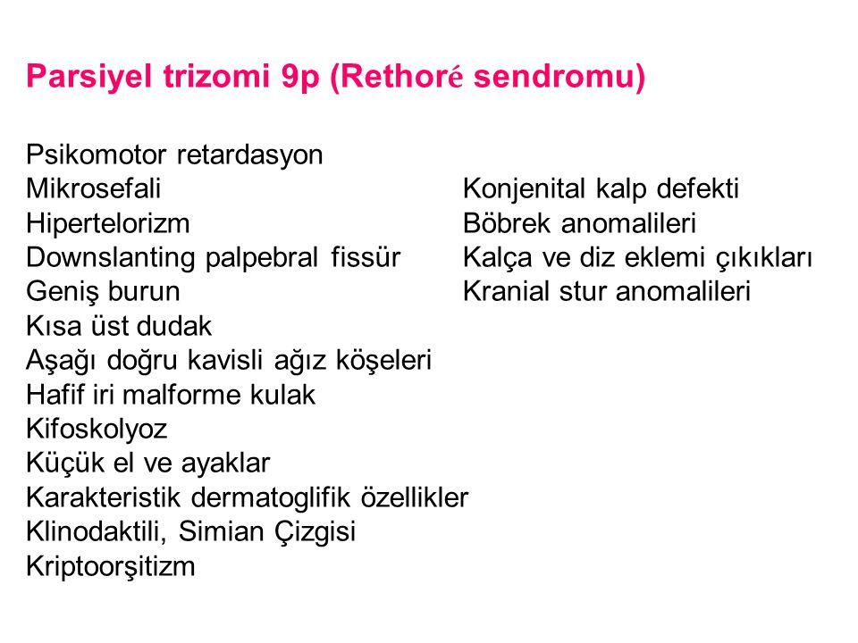 Parsiyel trizomi 9p (Rethoré sendromu)