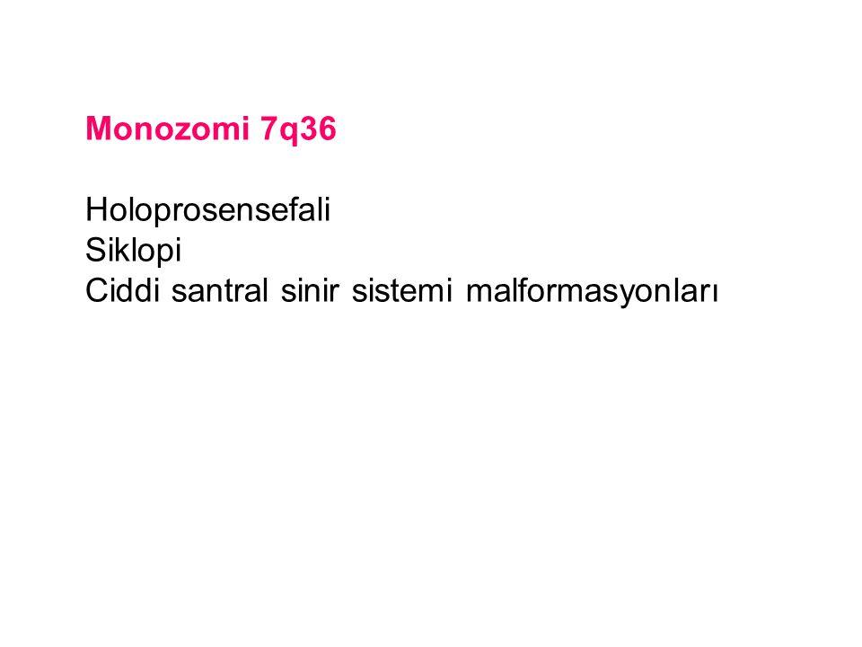 Monozomi 7q36 Holoprosensefali Siklopi Ciddi santral sinir sistemi malformasyonları