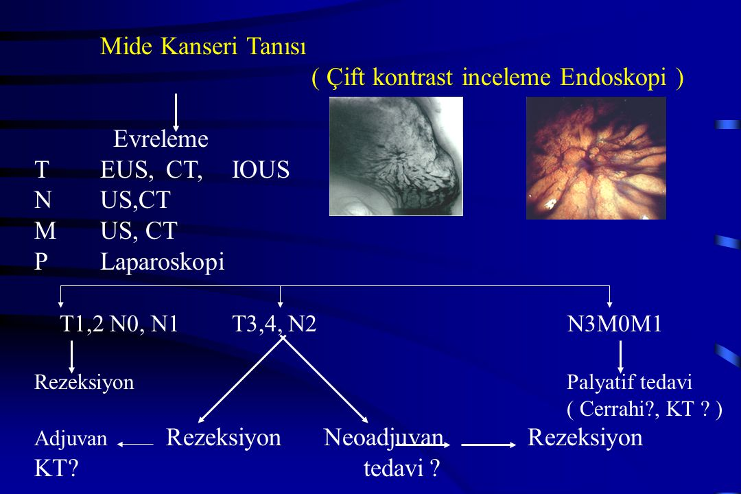 ( Çift kontrast inceleme Endoskopi ) Evreleme T EUS, CT, IOUS N US,CT