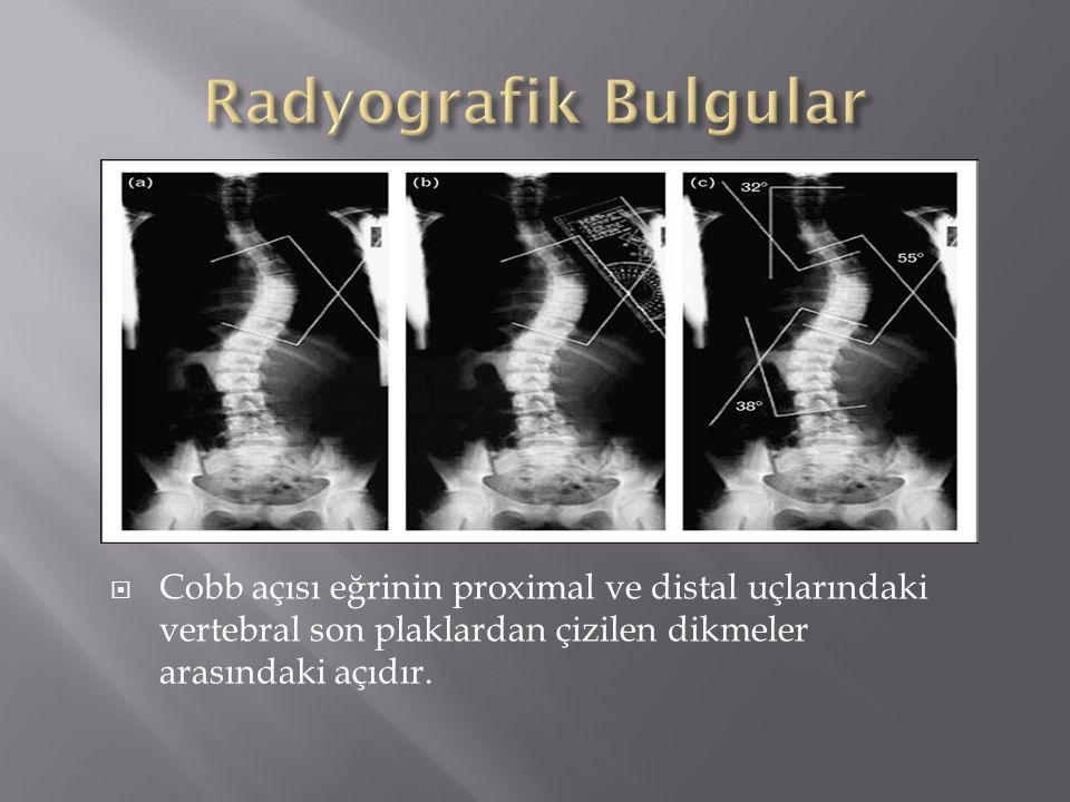 Radyografik Bulgular Cobb açısı eğrinin proximal ve distal uçlarındaki vertebral son plaklardan çizilen dikmeler arasındaki açıdır.